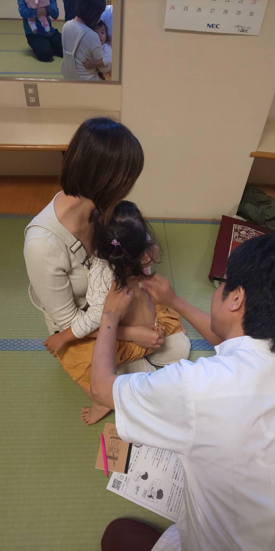幼児に小児はりを実践している様子